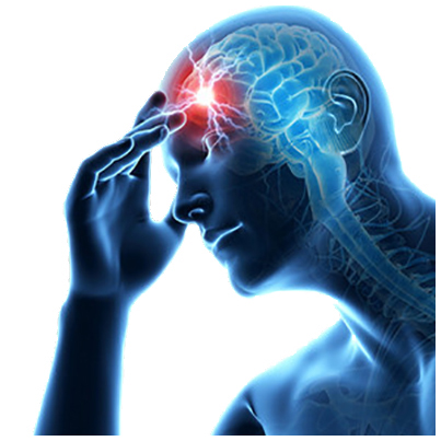 Accidentul vascular cerebral (AVC) - factori de risc, simptome, preventie